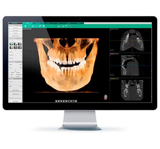 3D КТ снимок зубов