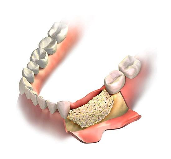 Костная пластика зубов