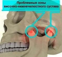 Лечение дисфункции ВНЧС — клиника Василенко ☎ +7 (812) 501-11-92